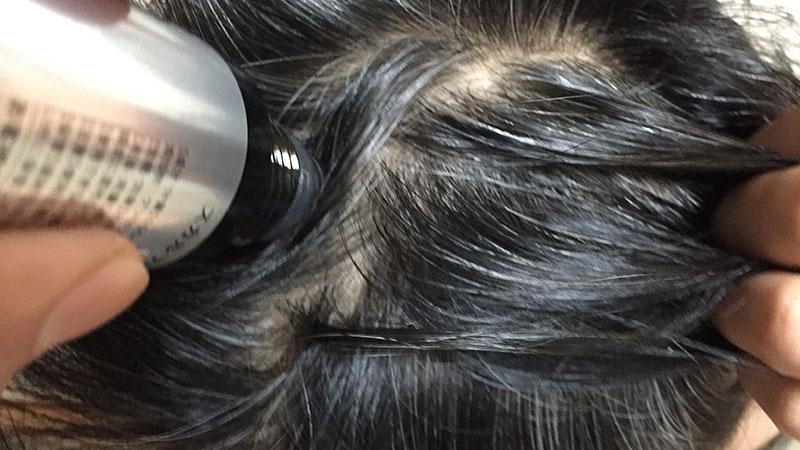 もうすぐ1ヶ月くらい経つがスカルプDメディカルミノキ5の影響はいかに?
