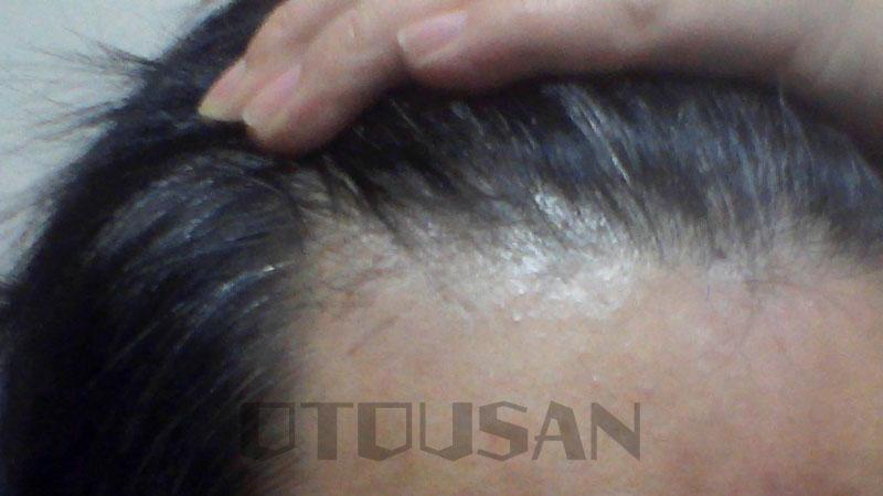 チャップアップを1本使い切っての毛髪状況